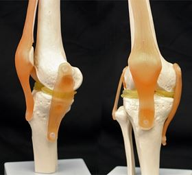 A cartilage-mimicking material created by researchers at Duke University may allow surgeons to 3D print meniscus implants or other replacement parts that are custom-shaped to each patient's anatomy. To demonstrate how it might work, the researchers used a $300 3D printer to create custom menisci for a model of a knee. Photo: Feichen Yang.