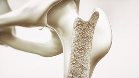 The company makes use of cellular titanium designed according to scientific insights on suitable pore shape and size to optimize bone ingrowth.