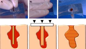 Schematic of the envisioned delivery procedure for the hydrogel-SMP foam composite. The first step is to insert the crimped device into the wound (A). Then apply manual compression over the wound site to prevent the device from exiting the wound before expansion (B). Finally, the composite expands to completely fill and conform to the wound cavity and establish rapid blood clotting and hemostasis (C).