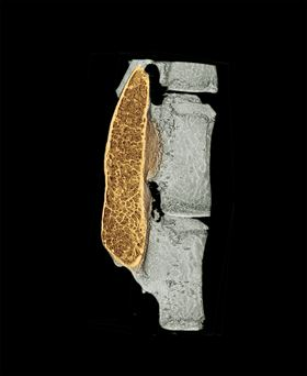 The colored region in this micro-CT image shows regenerated high-quality bone in the spine, produced with minimal use of growth factor. Image: Northwestern University.