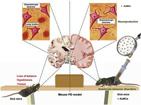 Gold nanoclusters (AuNCs) prevent a-Synuclein aggregation and fibrillation and improve cell viability in MPP+ lesioned cell model of Parkinson's disease (PD). MPTP induced mouse PD model experiment shows that AuNCs protect dopaminergic neurons and ameliorate behavioral disorders of sick mice. This opens a novel avenue to develop anti-PD drugs and points a new direction for AuNCs in medicinal applications.