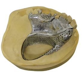 Removable partial denture incorporating a palatal obturator. (Design by Gill Egan.)