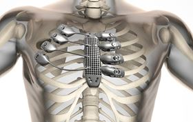 How the 3D printed sternum and rib cage was designed to fit inside the patient's body. Photo courtesy Anatomics.