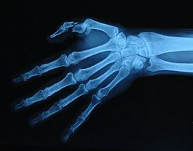 An x-ray of a hand with a severely broken thumb.