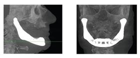 X-ray images showing the AM-produced lower jaw reconstruction implanted into the patient (left: side view; right: front view).