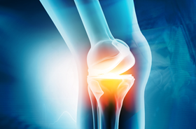 Articular cartilage is the tissue that covers the ends of bones at joints, helping to prevent them from painfully grinding together. Image: Perelman School of Medicine at the University of Pennsylvania.