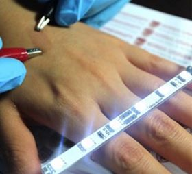 This photo shows the highly conductive ultrathin film on skin between the two clips. Photo: Sam Yoon/Korea University.