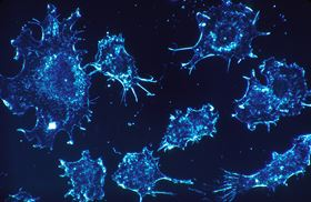 This work may open a new approach to attacking cancer. Credit: skeeze, www.pixabay.com (CCO)]