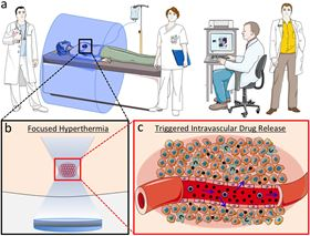 (a) At the macroscale, a team of healthcare and scientific professionals including physicians, physicists, nurses, and technologists administers chemotherapy and hyperthermia while monitoring tissue temperature. (b) At the microscale, conformal heating of the tumor and sparing of normal tissue is becoming an increased reality with improvements in thermal therapy technology. (c) At the nanoscale, hyperthermia induces intravascular drug release from nanomedicines (blue circles) which results in extravasation of the chemotherapy (black circles) into the surrounding tumor tissue.