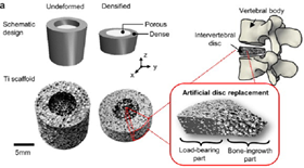 Gradient metallic implant for artificial disc replacement fabricated via freeze-casting densification.
