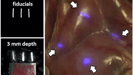 NICE coating lights up medical devices