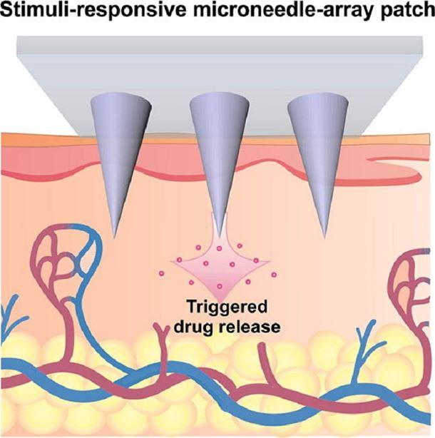 Stimuli-responsive transdermal microneedle patches