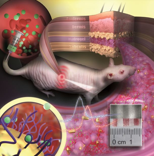 Implantable sensor acts as an invisible tattoo revealing concentration changes of substances in the blood by color change